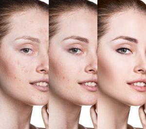Frau nach Anti aging Behandlung