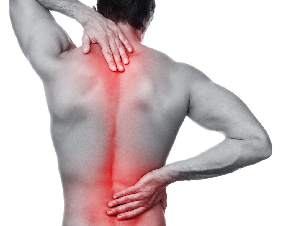 Rückenschmerzen behandeln