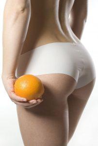 cellulite und Orangenhaut entfernen